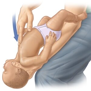 How to help a choking baby